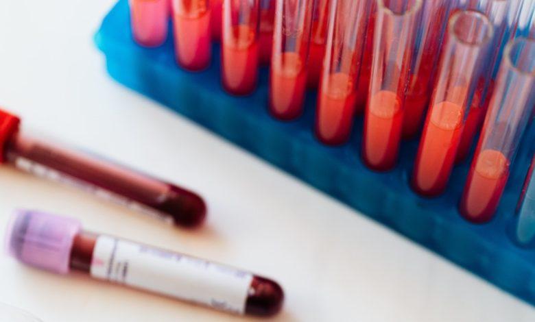 Hepatitis A, B, C, D y más, enfermedades que afectan el hígado