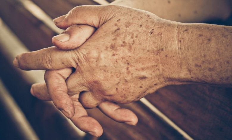 Manchas de la edad: por qué salen y cómo eliminarlas