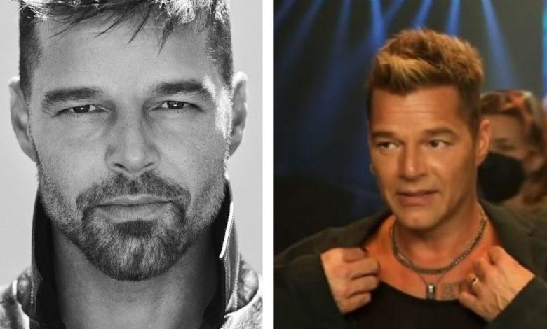 Ricky Martin ¿qué le pasó en el rostro?